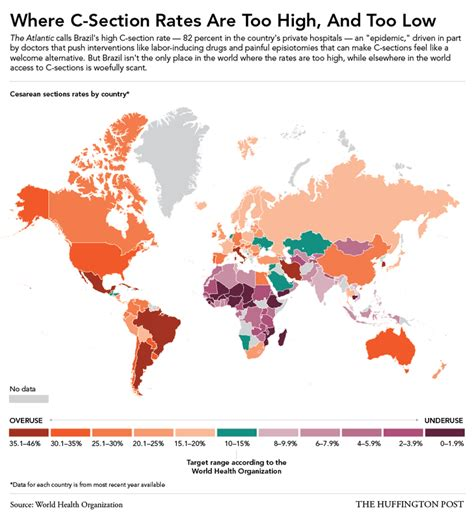 how many c sections can a safely c section rates around the world which countries perform