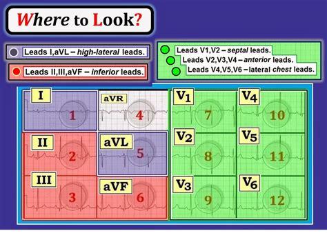 what color is lead interpretation 91 basic concepts 4 lead