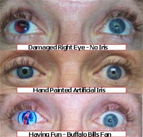 can you change eye color self hypnosis to change eye colour willie k lafrance