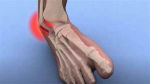 How To Avoid Sprained Ankles
