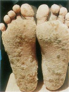 Hyperkeratosis On Sole  The Patient Died Of Lung Cancer The Patient Was