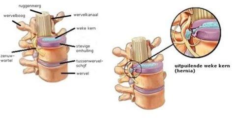 Stenose rug symptomen