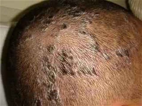 itchy scalp dry hair loss  treatment remedy