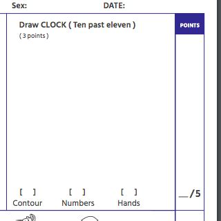 Clock drawing is part of the montreal cognitive assessment (moca) test but may have administration and scoring limitations. Trump's Cognitive Test Required He Identify a Picture of a ...