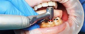 Digital Dentistry  3d Printing  And The Whole New World