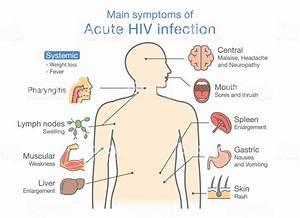 Main Symptom Acute Hiv Infection Stock Illustration