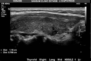 What can Go Wrong When an Thyroid Ultrasound finds a ...