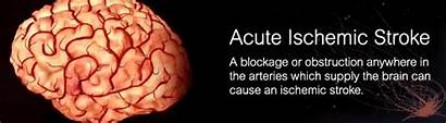 Stroke Ischemic Acute Brain Causes Symptoms Treatment