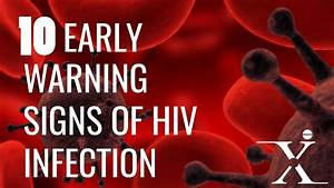 10 Early Signs And Symptoms Of Hiv Aids
