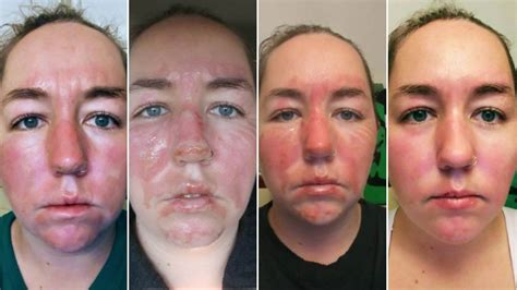 Woman Shares 2nd Degree Facial Burn Healing Process ...