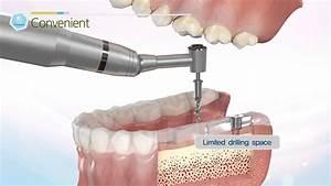 Dentis Dental Guide System  - Simple Guide