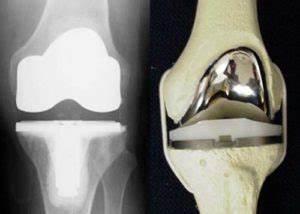 Коленный сустав боль была операция
