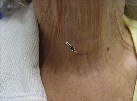 geriatric thyroidectomy safety  thyroid surgery
