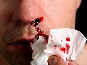 Причины носовых кровотечений при гипертонии