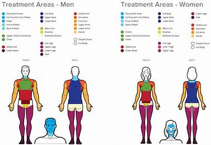 Removal Hair Laser Areas Simplicity Diagram Area