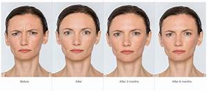 Botulinum toxin injections cost