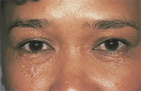 syringoma american academy  ophthalmology