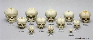 Human Fetal Skulls Set Of 12