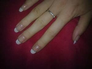 Грибок ногтей лекарства для снятия ногтях