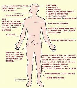 NF1 (neurofibromatosis type 1). Causes, symptoms ...