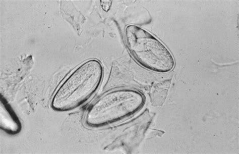 helix pinworm