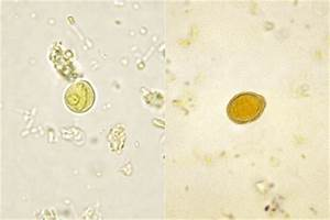 Medical Pictures Info – Chilomastix Mesnili