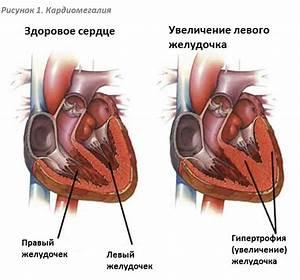 Санатории для лечения гипертонии в кисловодске