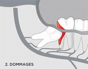 Symptome Dent De Sagesse : dents de sagesse montr al maxillo facial ~ Maxctalentgroup.com Avis de Voitures