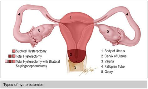 The Fibroid Treatment Collaborative - Fibroid Treatments ...