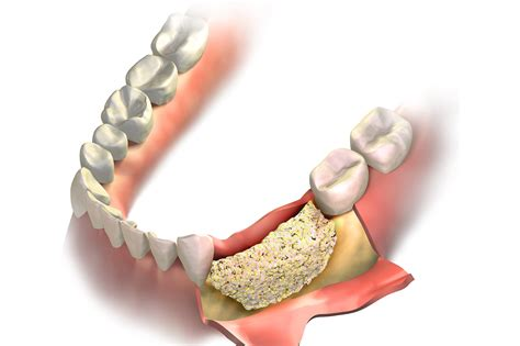bone grafting  alaska oral craniofacial surgery