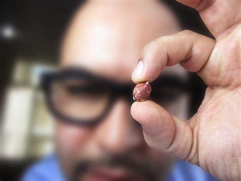 Viaskins Peanut Allergy Vaccine Seeks Alternative