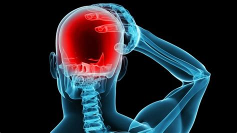 Himalaya migraine