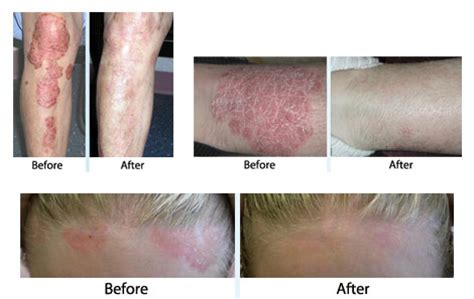 light treatment for psoriasis phototherapy dermatologist ge