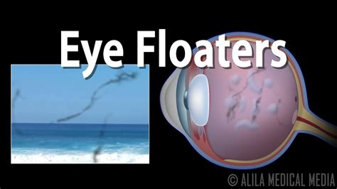 seeing lights in one eye eye floaters and flashes animation