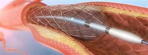 Percutaneous Transluminal Coronary Angioplasty  Ptca