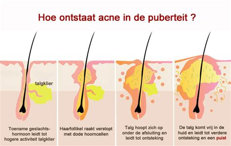 Sudocrem: voor luieruitslag en acne?