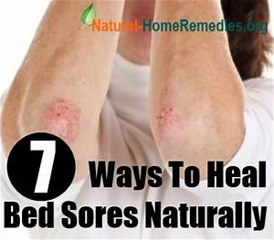 7 ways to heal bed sores naturally home remedies for bed for Bed sore relief