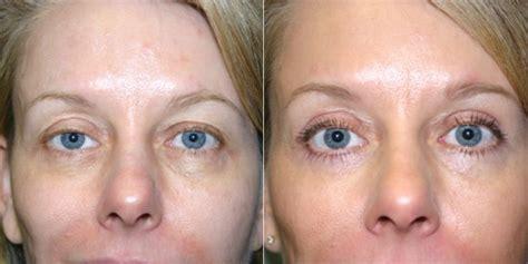 eyelid lift surgery vancouver plastic surgery blepharoplasty