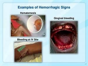 Image Gallery ebola bleeding