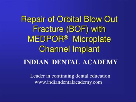 Orbital Floor Fracture Ppt by Orbital Out Fracture Repair Certified Fixed