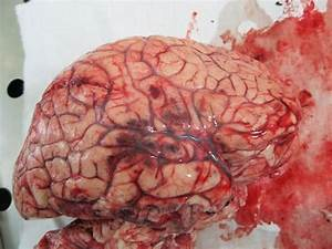 Homicideophilia  U201c Contusions Of The Right Parietal And