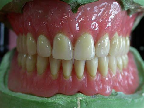 protesi mobile totale protesi totale odontotecnica castellana