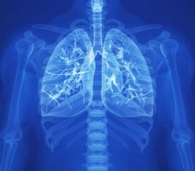 cubas lung cancer vaccine heading