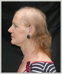 Cure for androgenitic alopecia in women - Doctor answers