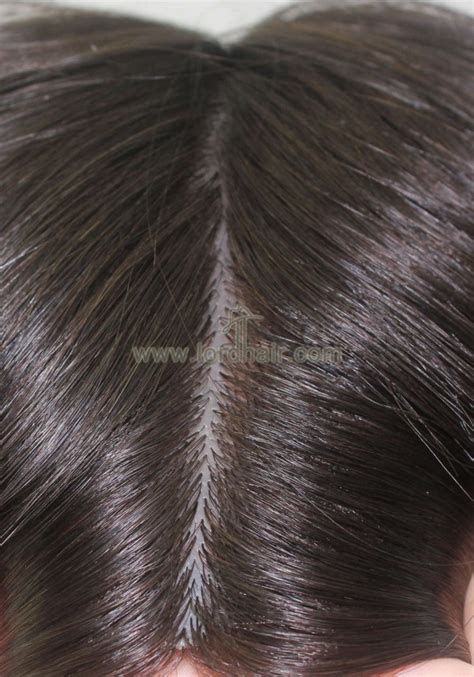 realistic silicon base injected human hair replacement