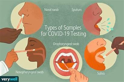 Covid Sample Test Testing Tests Coronavirus Diagnostic