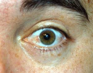 Pterygium Symptoms  Signs  Treatments  Recovery  Pre