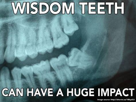 Wisdom Teeth Meme - wisdom teeth can have a huge impact dental memes pinterest teeth and wisdom