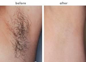 Kirkland Permanent Laser Hair Removal & Medical Spa ...