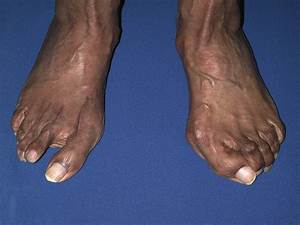 How To Address Complications Of Hammertoe Surgery ...